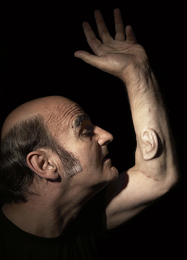 Ear on Arm, 2006, Stelarc. London, LOs Angeles, and Melbourne. Image by Nina Sellars, courtesy of Stelarc.