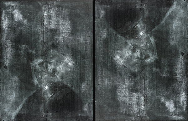 X-radiographs of An Old Man in Military Costume