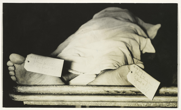 John Dillinger's Feet, Chicago Morgue, 1934, Unknown photographer. Gelatin silver print, 4 11/16 x 7 13/16 in. Courtesy The Metropolitan Museum of Art